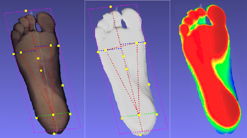 Podoscan 3D – laser foot scanner – podoskaner stóp i negatywów w 3D