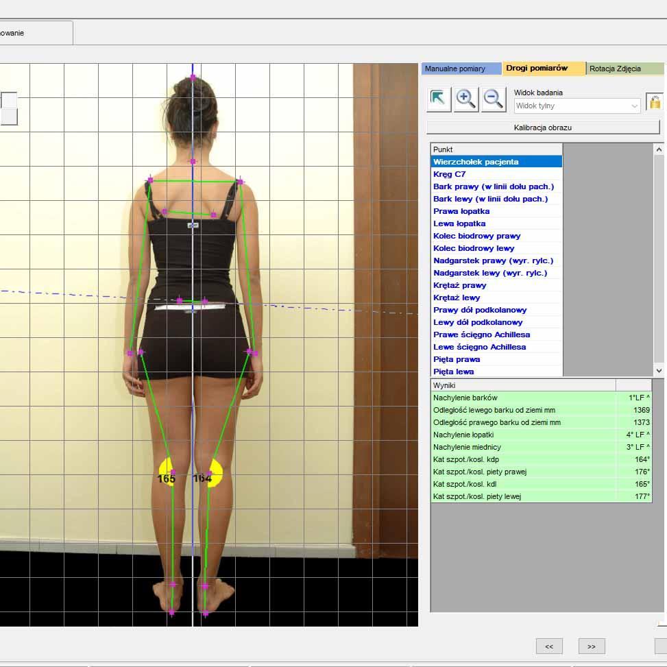 System analizy postawy - Videografia 2D