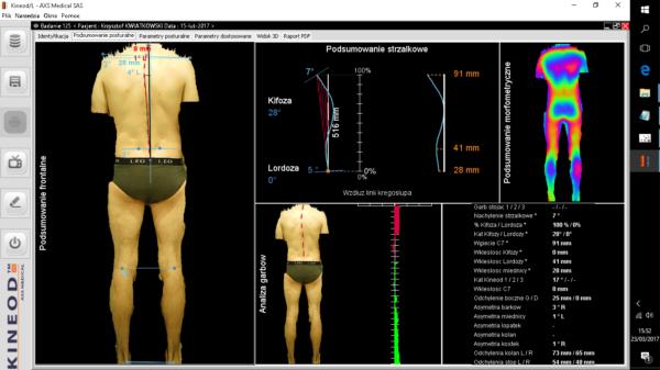 urządzenie do analizy postawy ciała